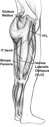 Massage therapy and injury rehab for ITT, ITB, IT band pain, Iliotibial band pain in runners, hikers, cyclists. Boulder & Broomfield therapists, Louisville, Westminster, Gunbarrel, Denver.