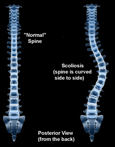 Massage therapy treatments and injury rehab & prevention for scoliosis pain, curved back or spine.  Scoliotic curve treatments from Boulder, Broomfield, Louisville, Westminster, Gunbarrel, Denver massage therapists.
