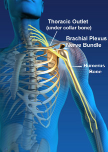 Massage therapy and injury rehab for thoracic outlet syndrome, nerve pain in your neck, arms, elbow, hand or wrist.  Massage therapists in Boulder, Broomfield, Louisville, Westminster, Gunbarrel, Denver.