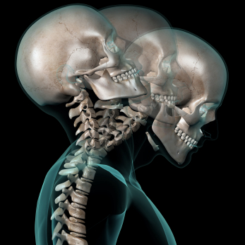 Massage therapy treatments and injury rehab for whiplash pain, neck injuries, auto accidents, bulging or herniated disc in your cervical spine. Therapists in Boulder, Broomfield, Louisville, Westminster, Gunbarrel, Denver.