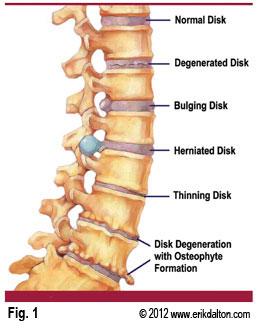 Bulging disc, degenerative disc & herniated disc
