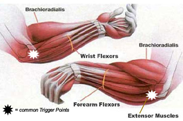 wrist flexor and extensor muscles of the forearm