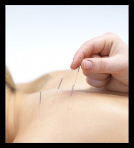 Acupuncture, Sports Acupuncture, Wellness