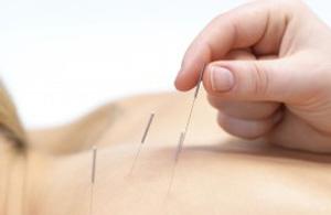 Sports Acupuncture & Wellness Boulder, Superior, Louisville